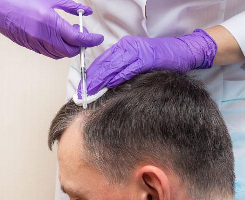 Toronto -hair-restoration